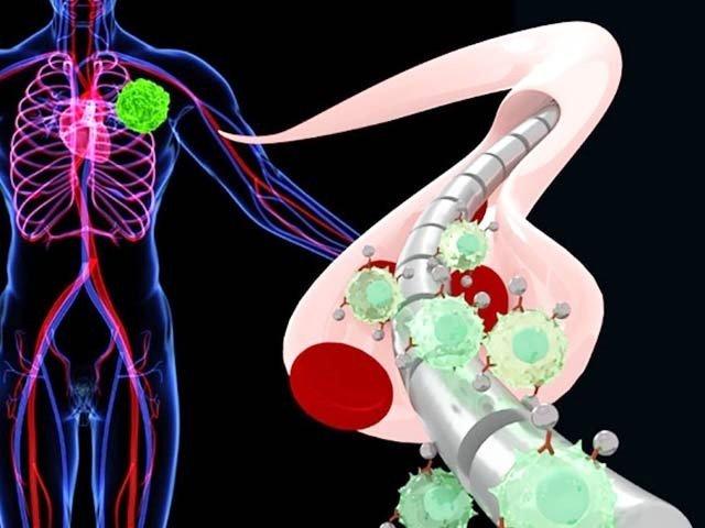 اس فرضی تصویر میں سرطانی خلیات مقناطیسی تار سے چپکے ہوئے ہیں۔ فوٹو: بشکریہ سیم گھمبیر